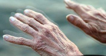 Bệnh parkinson gây mất kiểm soát điều tiết mồ hôi
